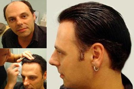 Prodotti per infoltire capelli uomo